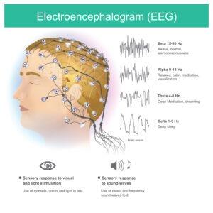 Frequenzband Neurofeedback